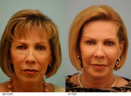 lam-facial-plastics